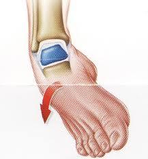 lesion del tobillo