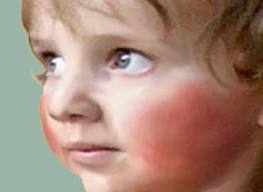 la quinta enfermedad infantil